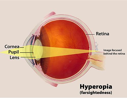 eye12_72_hyperopiarev